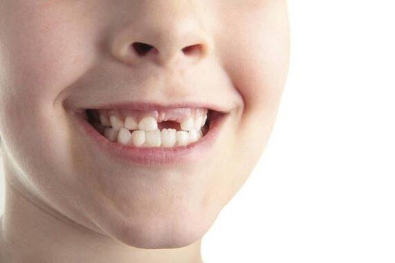 Giải mã giấc mơ thấy rụng răng là điềm báo gì